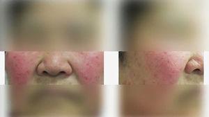 중년 여성의 안면 홍조…심각한 질병 경고음