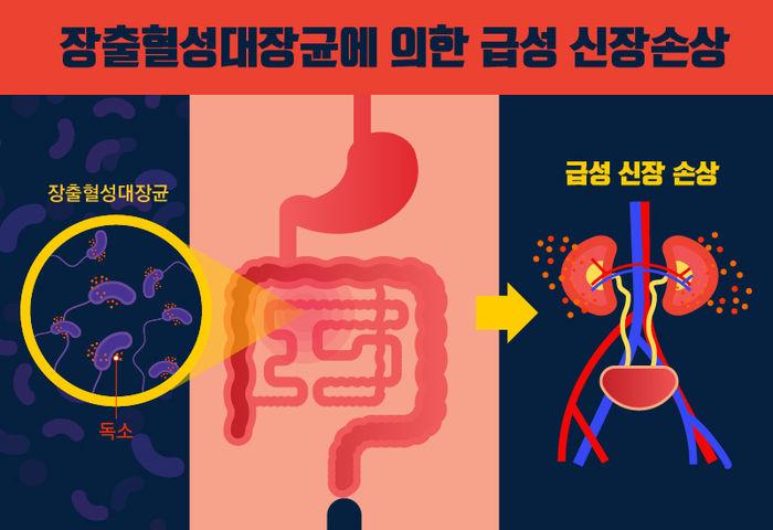 장출혈성대장균에 의한 급성 신장 손상