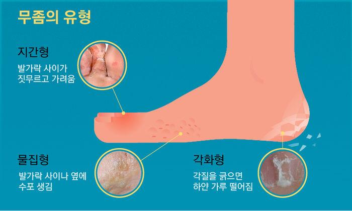 여름철 필수 아이템 '쪼리'…발가락 기형 만드는 주범?