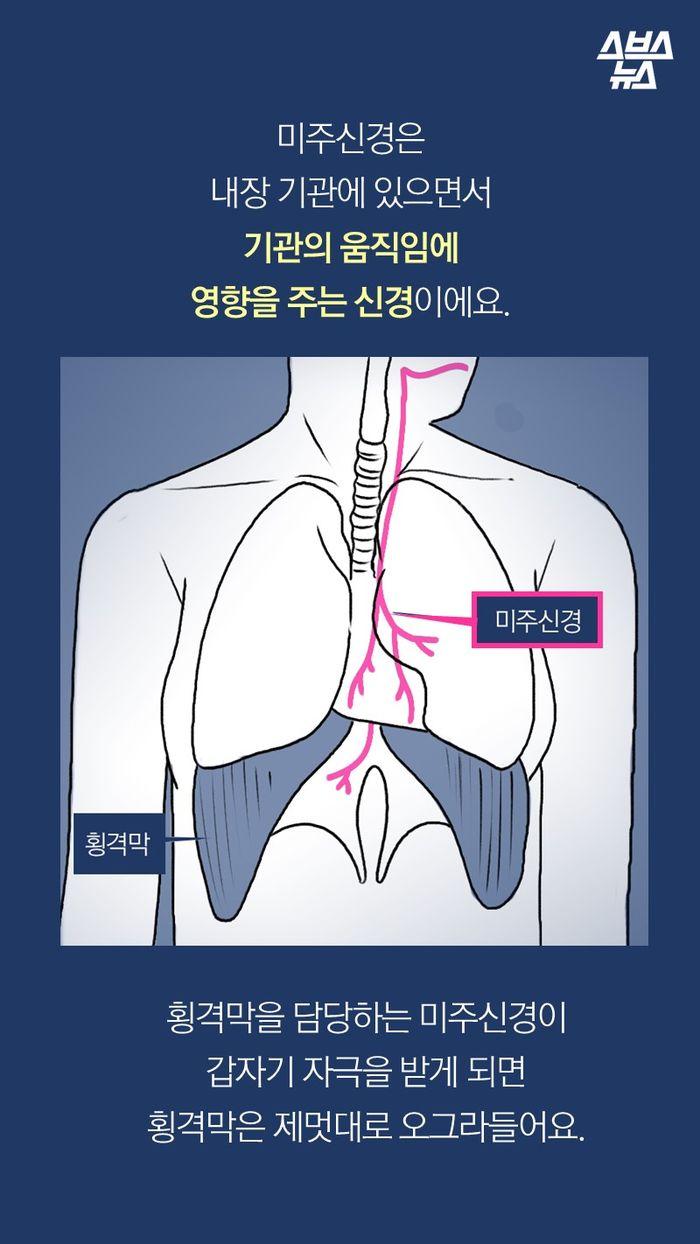 미주신경은 내장 기관에 있으면서  기관의 움직임에 영향을 주는 신경이에요.   횡격막을 담당하는 미주신경이 갑자기 자극을 받게 되면 횡격막은 제멋대로 오그라들어요.