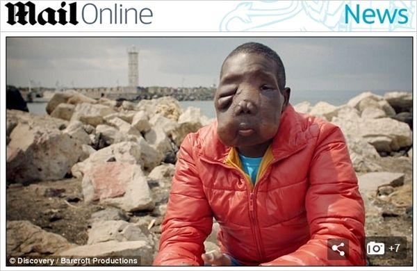 얼굴을 뒤덮은 악성 종양…엄마에게도 버림받은 17살 소년