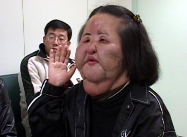 整容失败照片_韩国女星整容失败后成\
