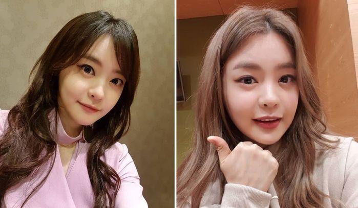 """서유리, 예뻐진 외모에 또 성형설…""""안병증 완치+다이어트 덕"""" 해명"""